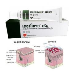 Kem trị vảy nến Dermovate cream Thailand