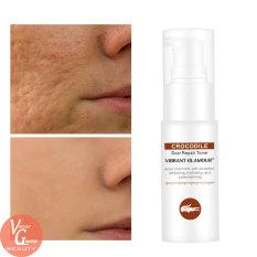 VIBRANT GLAMOUR Serum Phục Hồi Da Sẹo Rỗ Làm Mờ Vết Thâm Loại Bỏ Sẹo Kiềm Dầu VG Skin Care Scar Treatment Repair Toner Serum
