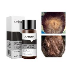 Tinh Chất Kích Thích Mọc Tóc Dưỡng Tóc Chuyên Sâu Mọc Nhanh Giảm Gãy Rụng Lanbena Hair Growth Oil 20Ml