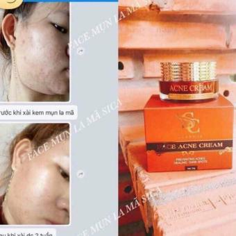 Kem Tri Mụn Sica White ( FACE ACNE CREAM )