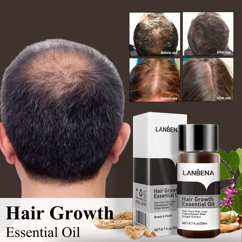 LANBENA Tinh dầu gừng thảo mộc giúp mọc tóc dưỡng tóc ngăn ngừa rụng tóc 20ml – intl
